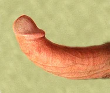 erectile dysfunction symptoms and a peyronies disease bent penis