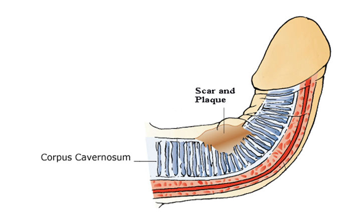 peyronies is caused by a simple scars you can not see