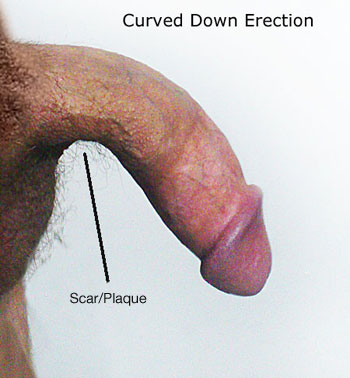 bent penis cure for scar or plaque