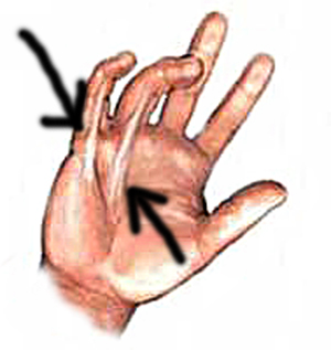 dupuytrens contracture 2