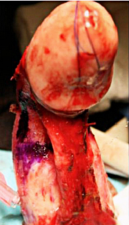 phalloplasty and possible impotence