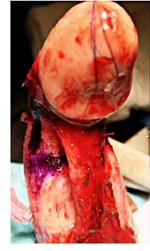 male enhancement surgery