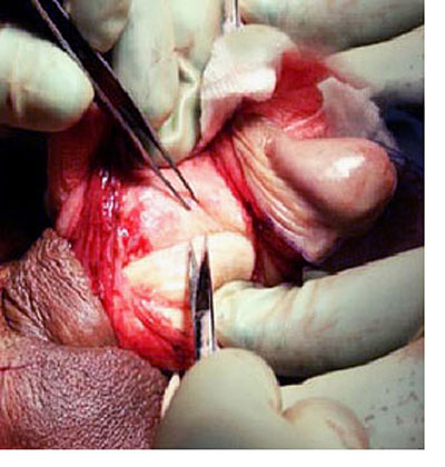 surgical treatment for Peyronies disease