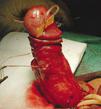 surgical cure for peyronies disease
