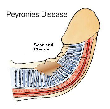 what causes peyronies disease