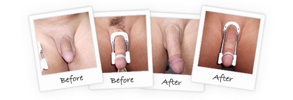 all natural male enhancement before and after pictures