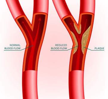 natural treatment for erectile dysfunction caused by arteriosclerosis