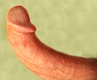 dupuytrens contracture can cause a curved or bent penis