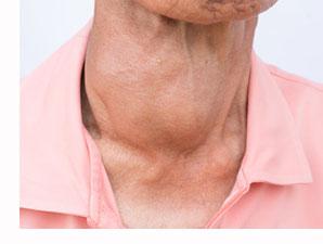 goiter and BPH benign prostatic hyperplasia