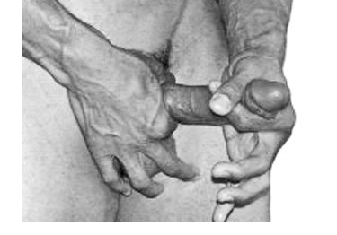 Penis damage from jelqing