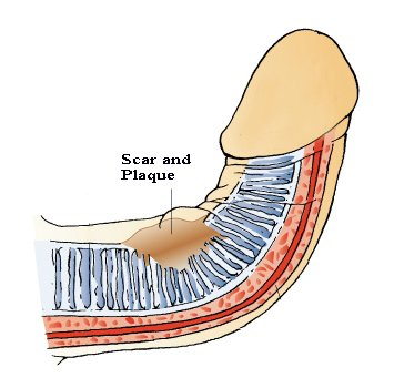peyronies disease causes and treatments