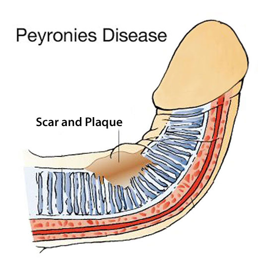what causes peyronies disease?