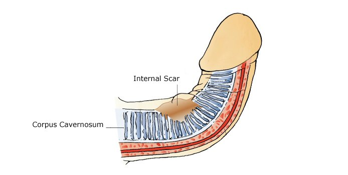 causes of erection problems from internal scar tissue