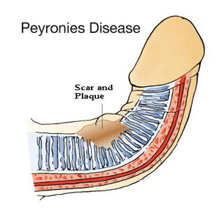 what is peyronies disease?